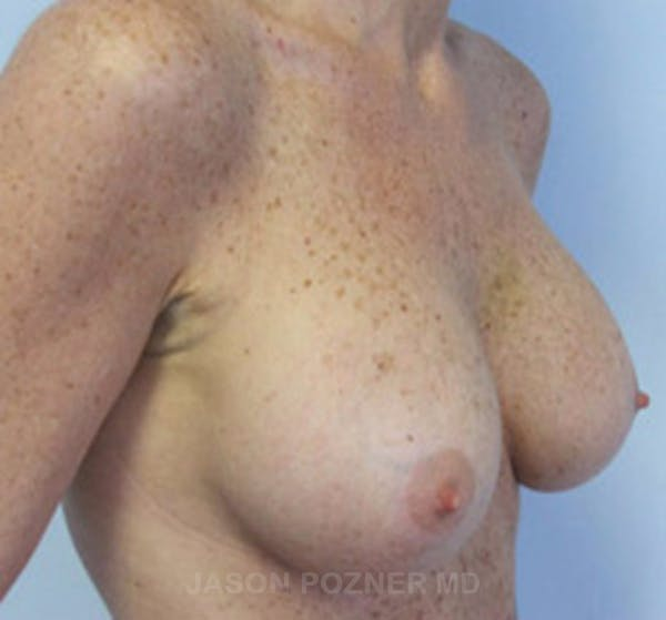 Breast Augmentation Gallery - Patient 19057088 - Image 4
