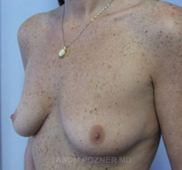 Breast Augmentation Gallery - Patient 19057088 - Image 5