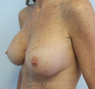 Breast Augmentation Gallery - Patient 19057088 - Image 6