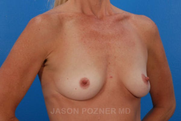 Breast Augmentation Gallery - Patient 19057091 - Image 1