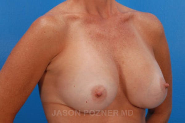 Breast Augmentation Gallery - Patient 19057091 - Image 2