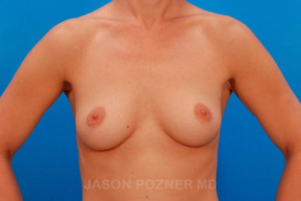 Breast Augmentation Gallery - Patient 19057093 - Image 1