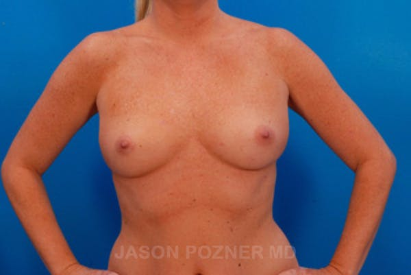 Breast Augmentation Gallery - Patient 19057097 - Image 1