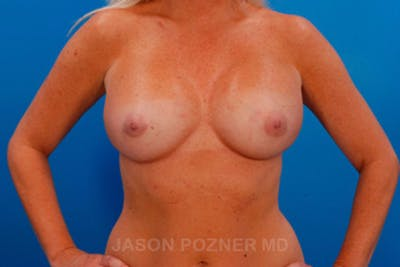 Breast Augmentation Gallery - Patient 19057097 - Image 2
