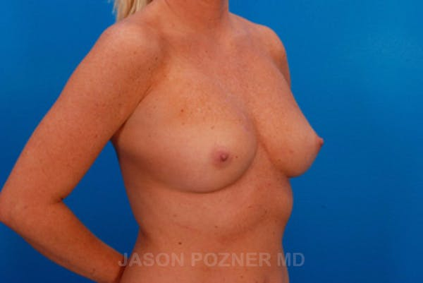 Breast Augmentation Gallery - Patient 19057097 - Image 3