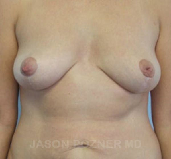 Breast Lift Gallery - Patient 19057099 - Image 2