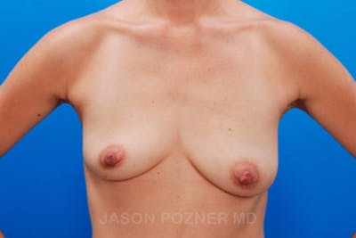 Breast Augmentation Gallery - Patient 19057098 - Image 1