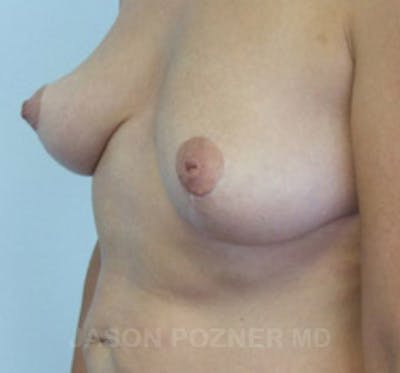Breast Lift Gallery - Patient 19057099 - Image 4