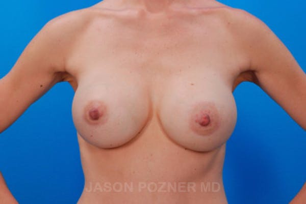 Breast Augmentation Gallery - Patient 19057098 - Image 2