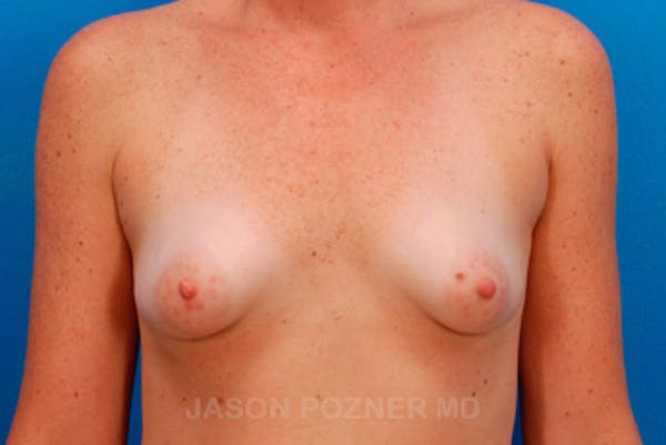 Breast Augmentation Gallery - Patient 19057101 - Image 1