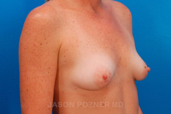 Breast Augmentation Gallery - Patient 19057101 - Image 3