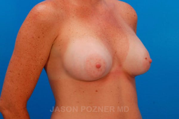 Breast Augmentation Gallery - Patient 19057101 - Image 4