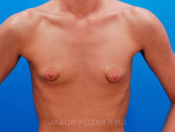 Breast Augmentation Gallery - Patient 19057104 - Image 1