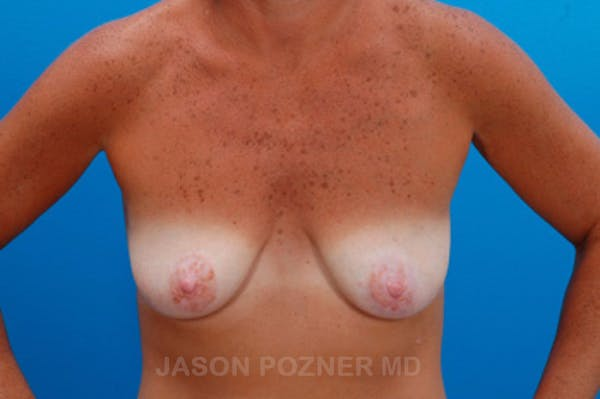 Breast Augmentation Gallery - Patient 19057106 - Image 1