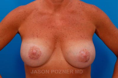 Breast Augmentation Gallery - Patient 19057106 - Image 2