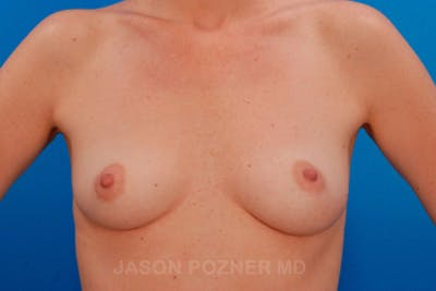Breast Augmentation Gallery - Patient 19057108 - Image 1