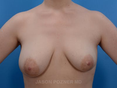 Breast Augmentation Gallery - Patient 19057110 - Image 1