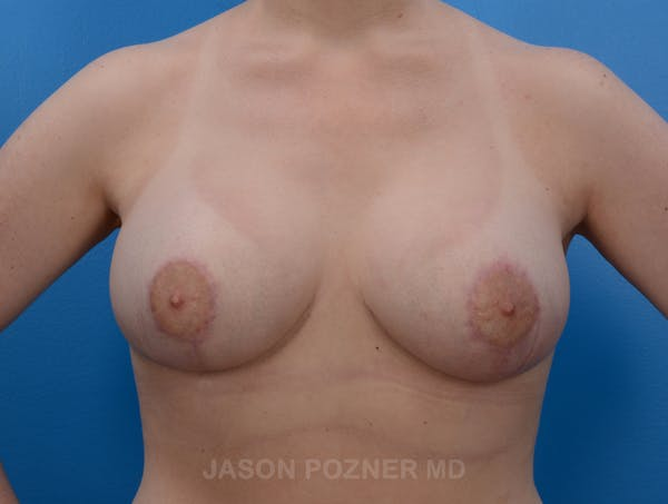 Breast Augmentation Gallery - Patient 19057110 - Image 2