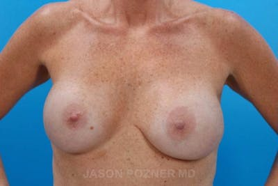 Breast Reduction Gallery - Patient 19072941 - Image 1