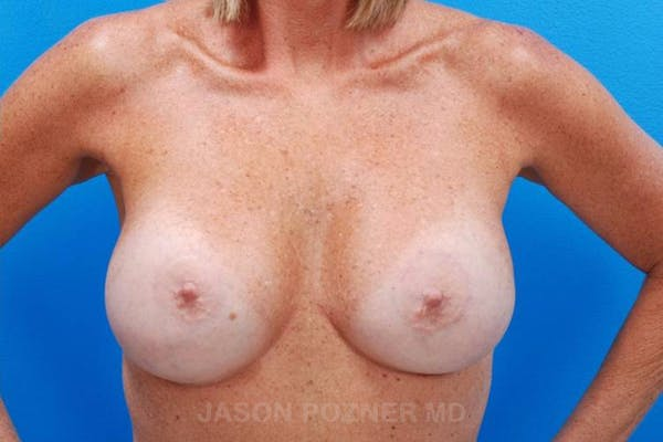 Breast Reduction Gallery - Patient 19072941 - Image 2