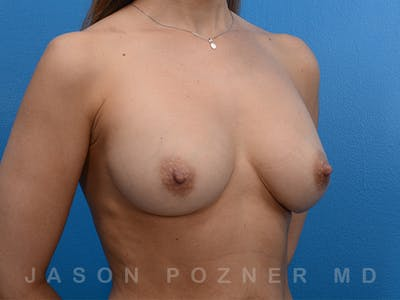 Breast Revision Gallery - Patient 19072943 - Image 4