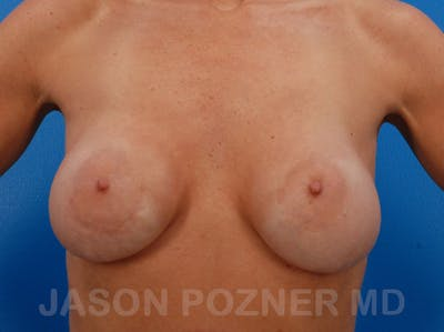Breast Revision Gallery - Patient 19072945 - Image 1