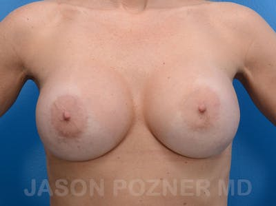 Breast Revision Gallery - Patient 19072945 - Image 2