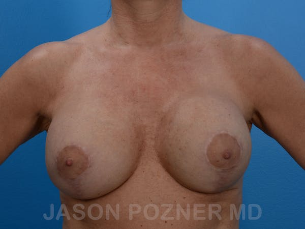 Breast Revision Gallery - Patient 19072946 - Image 1