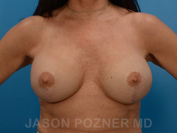 Breast Revision Gallery - Patient 19072946 - Image 2