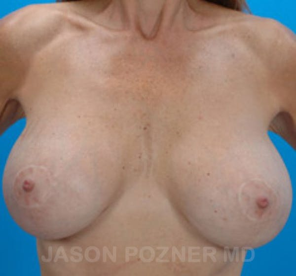 Breast Revision Gallery - Patient 19072948 - Image 1