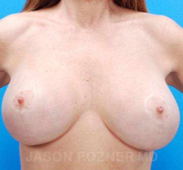 Breast Revision Gallery - Patient 19072948 - Image 2