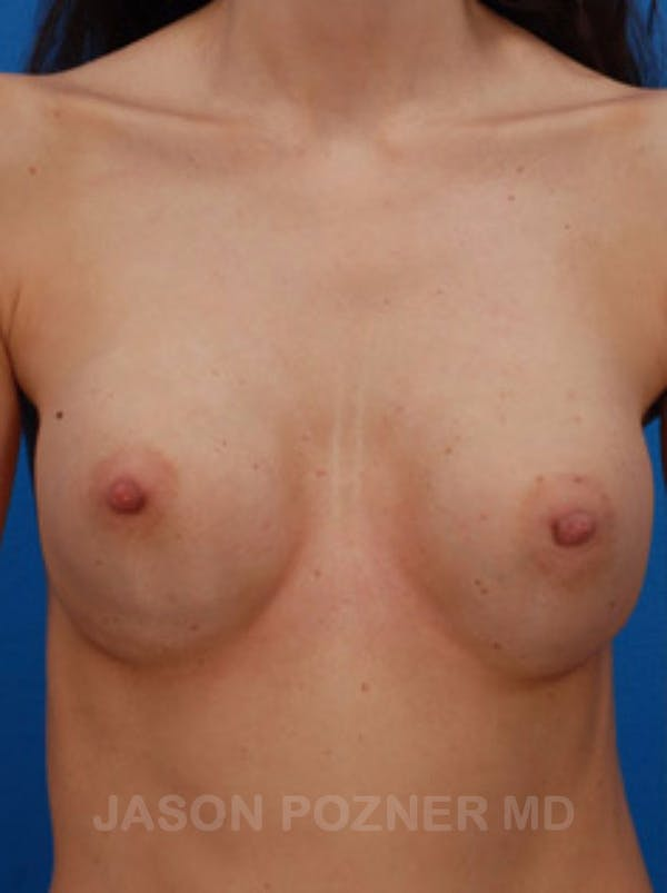 Breast Revision Gallery - Patient 19072949 - Image 1