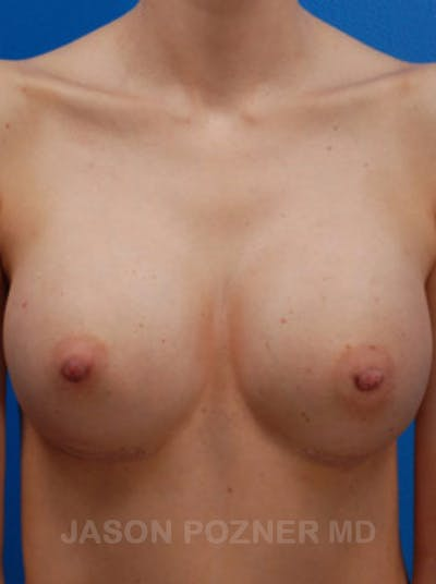 Breast Revision Gallery - Patient 19072949 - Image 2
