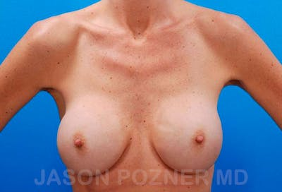 Breast Revision Gallery - Patient 19072950 - Image 1