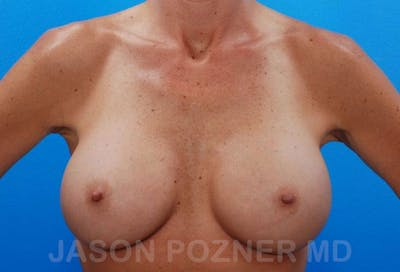 Breast Revision Gallery - Patient 19072950 - Image 2