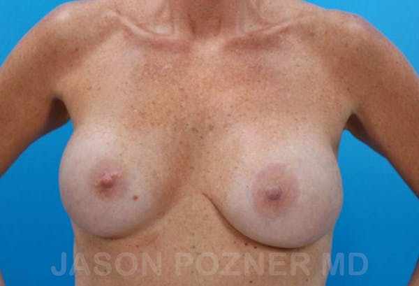 Breast Revision Gallery - Patient 19072953 - Image 1