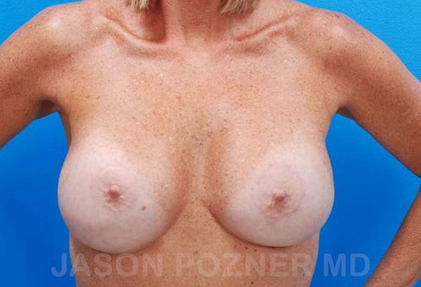 Breast Revision Gallery - Patient 19072953 - Image 2