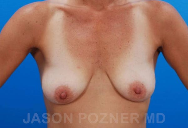 Breast Revision Gallery - Patient 19072955 - Image 1