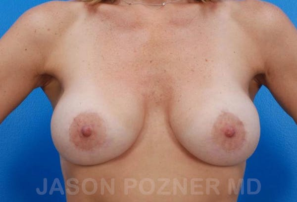 Breast Revision Gallery - Patient 19072955 - Image 2