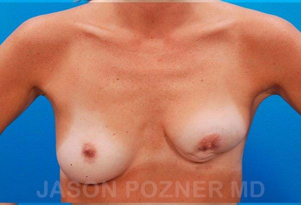Breast Revision Gallery - Patient 19072958 - Image 1