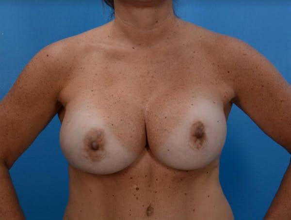 Implant Removal with Mastopexy Gallery - Patient 19072968 - Image 1
