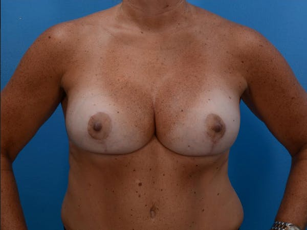 Implant Removal with Mastopexy Gallery - Patient 19072968 - Image 2