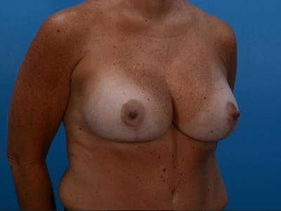 Implant Removal with Mastopexy Gallery - Patient 19072968 - Image 4