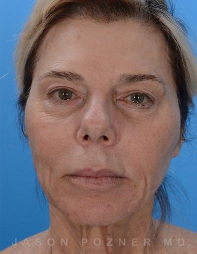 Facelift Gallery - Patient 19072998 - Image 1