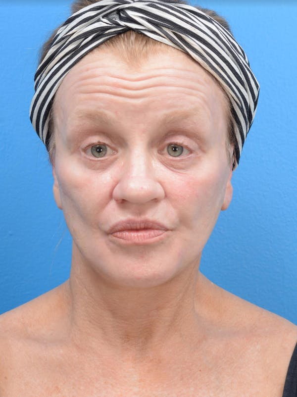 Facelift Gallery - Patient 19073006 - Image 2
