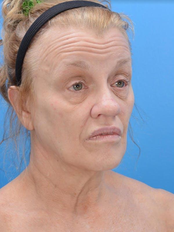 Facelift Gallery - Patient 19073006 - Image 3