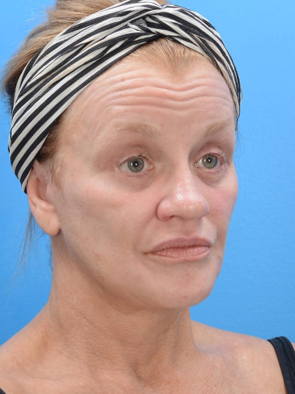 Facelift Gallery - Patient 19073006 - Image 4