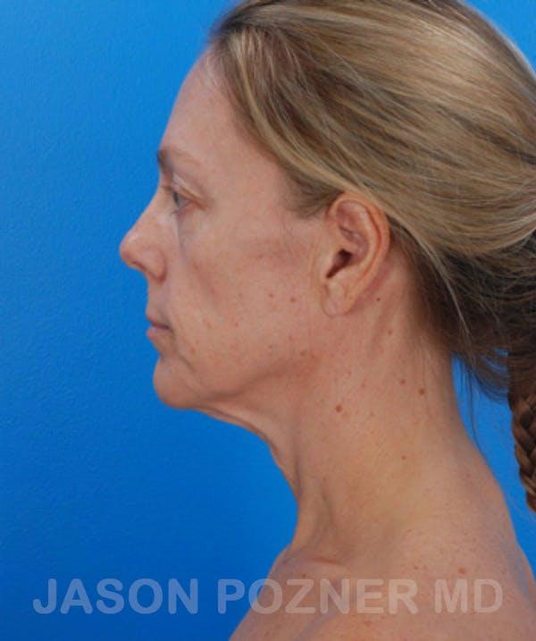 Facelift Gallery - Patient 19073010 - Image 3