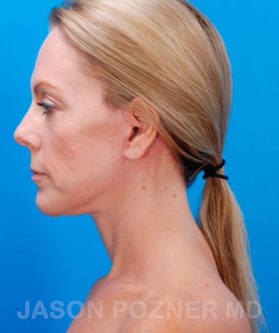 Facelift Gallery - Patient 19073010 - Image 4