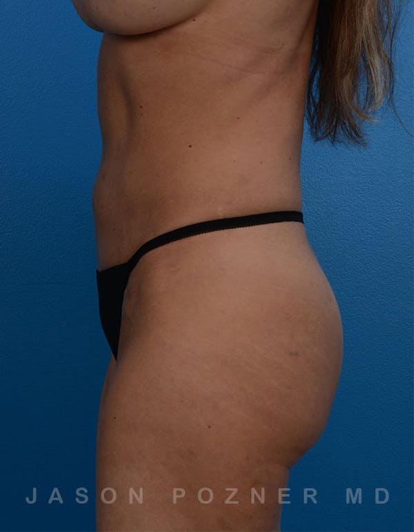 BodyTite & Renuvion Gallery - Patient 26207458 - Image 2